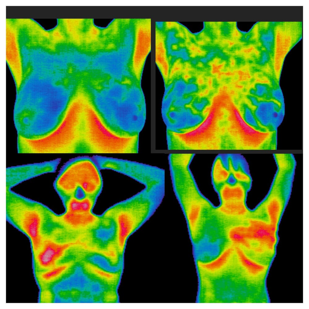 However, breast thermography is not a replacement for or alternative to  mammography or any other form of breast imaging.